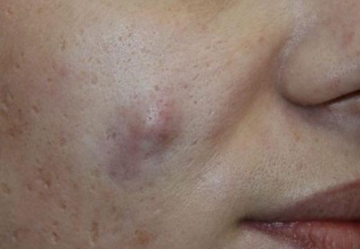 шишка на лице