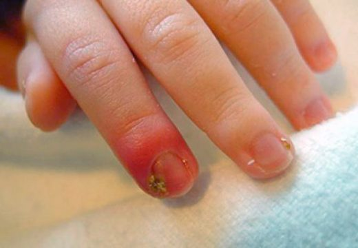 красный палец