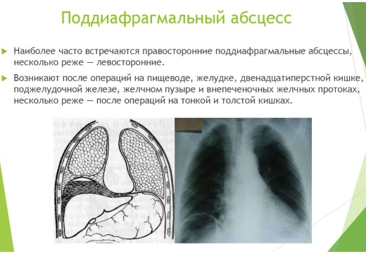 поддиафрагмальный абсцесс проявление