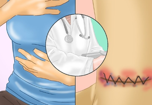 инфецирование послеоперационного шва