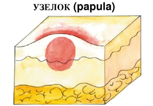 узелок папула рисунок