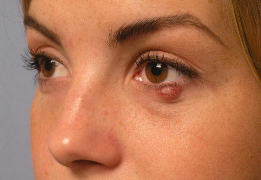 воспаление под глазом