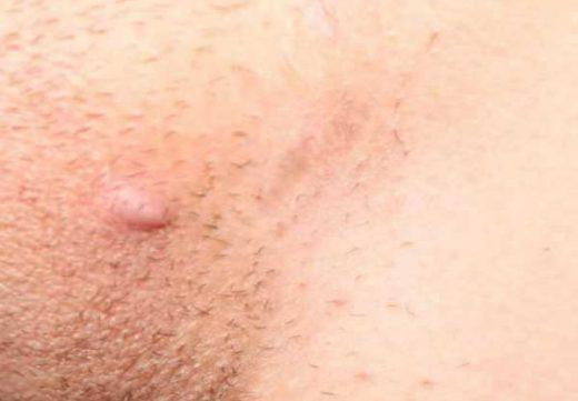 сыпь на лобке